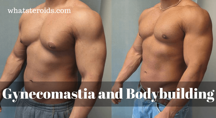 Gynecomastia and Bodybuilding
