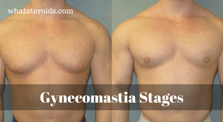 Gynecomastia Has Three Stages: