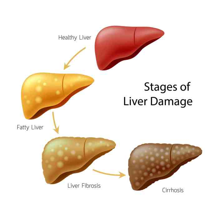 Liver Damage or Not