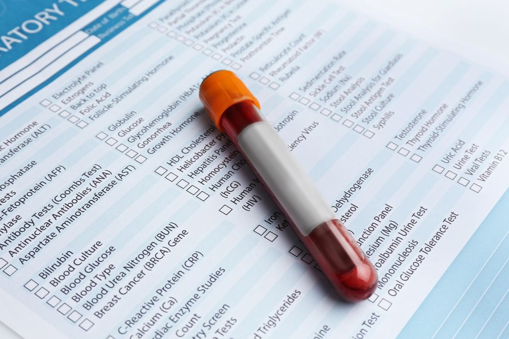Serum Bilirubin – Another Important Blood Test For Detecting Liver Function