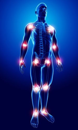 Deca-Durabolin Effects On Joints
