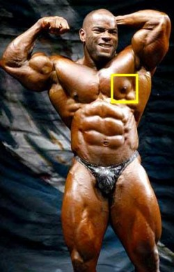 What Can Be Done About Prolactin Induced Gynecomastia