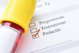 What Causes Elevated Prolactin?
