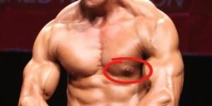 gyno bodybuilding