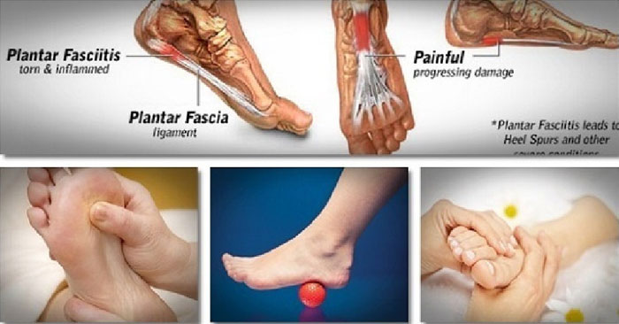 Treatment of the Plantar Fasciitis