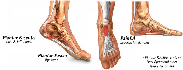 Signs of Plantar Fasciitis