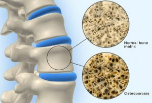 Estrogen Helps Maintain the Bone Density