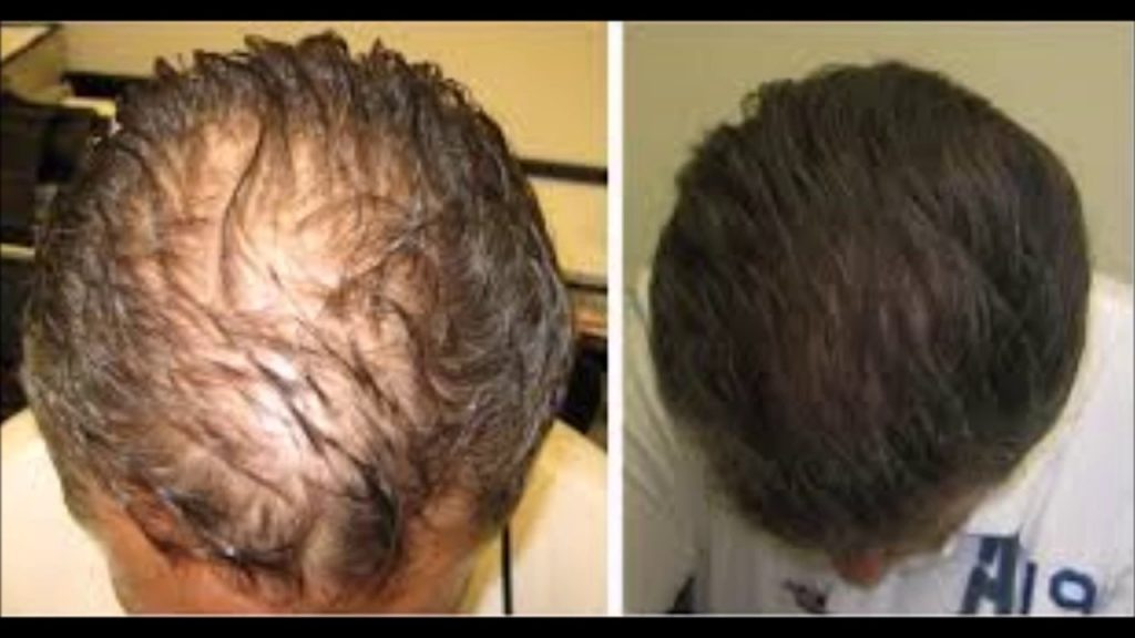 Andractim and Hair Loss